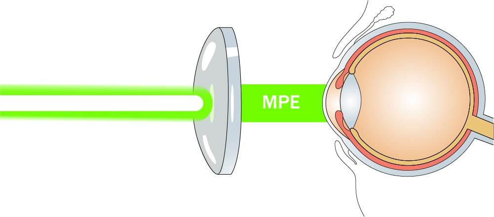 "Maximum Permissible Exposure (""MPE"") Laser Safety"